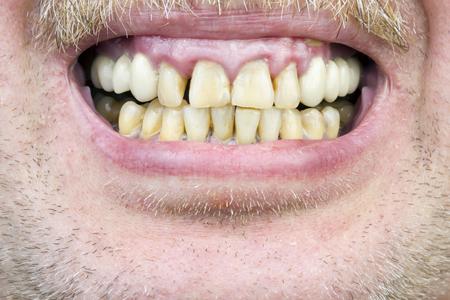 man with gum disease