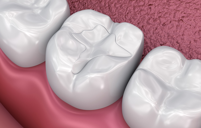 illustration of tooth-coloured fillings.